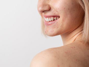 como disminuir cicatrices y marcas de acne
